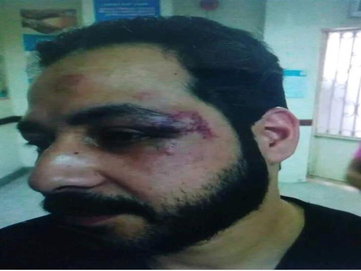 """تفاصيل الاعتداء على طبيبين بمستشفى الساحل التعليمي: """"كسروا أنف أحدهما"""""""