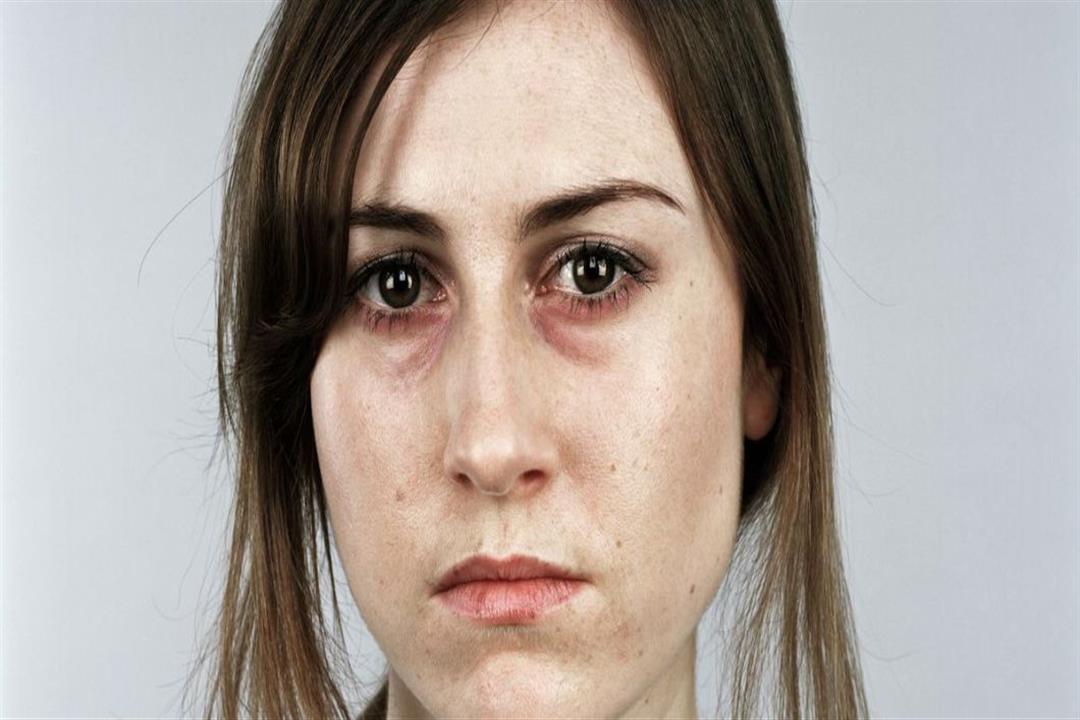 8 أعراض مصاحبة للأنيميا التكسيرية.. تعرف عليها