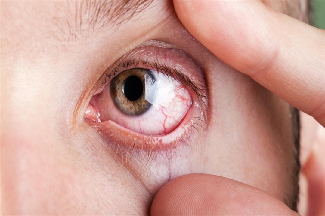 6 أعراض قد تشير للإصابة بسرطان العيون.. توجه للطبيب فورا