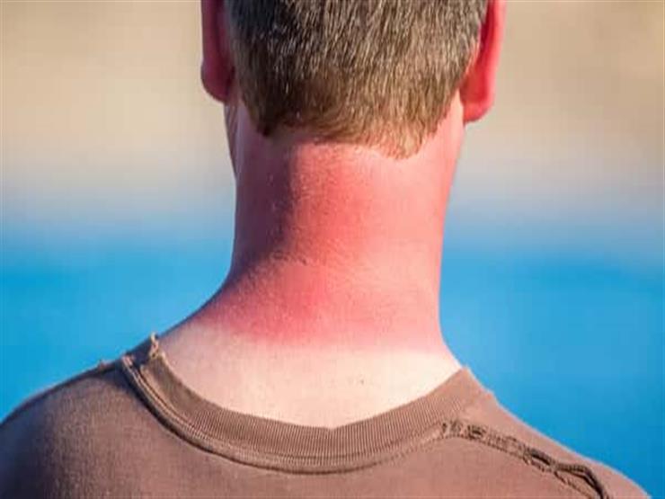 5 حلول آمنة لعلاج حروق الشمس (صور)