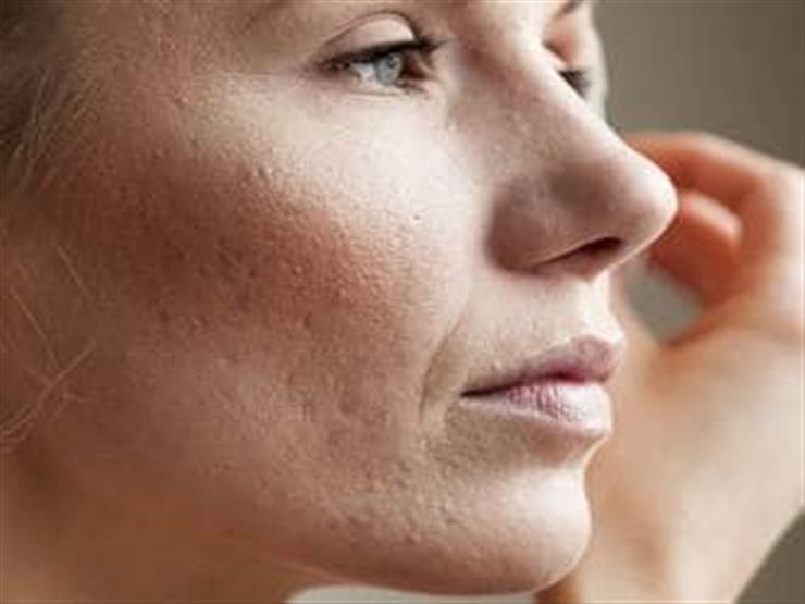 4 طرق بسيطة للتخلص من ندوب الوجه