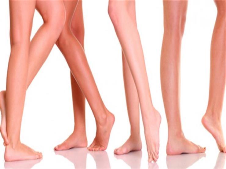 8 نصائح لحمايتك من الإصابة بدوالي الساقين