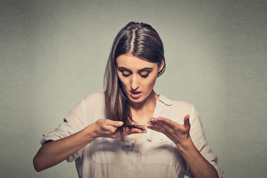 هل تقلق من تساقط شعرك؟.. تعرف على فوبيا الصلع