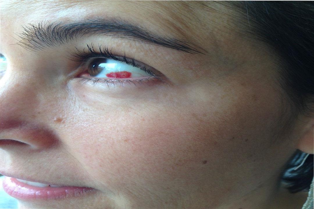 هل البقع الحمراء في بياض العين تشير لمشكلة خطيرة؟