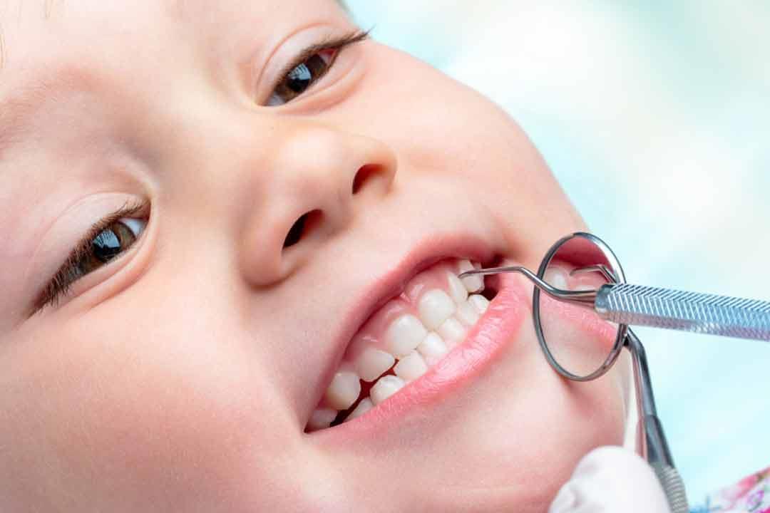 هل يمكن تبيض الأسنان الدائمة للطفل؟