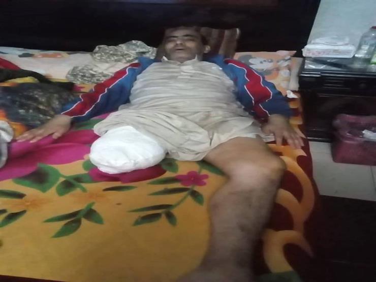"""""""دخل على رجله خرج عاجز"""".. بلاغ يتهم مستشفى بالتسبب في بتر قدم مريض (صورة)"""