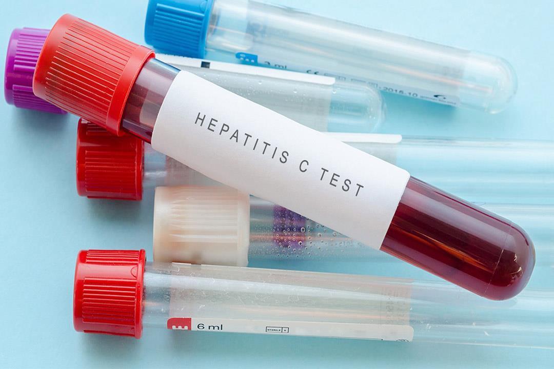 """""""مكافحة الفيروسات"""": تعاقدنا على 45 ألف علبة مصل جديد لعلاج منتكسي """"فيروس سي"""""""