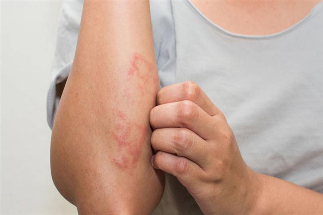 مرضى السكر معرضون لها.. أسباب وعلاج التقرحات الجلدية
