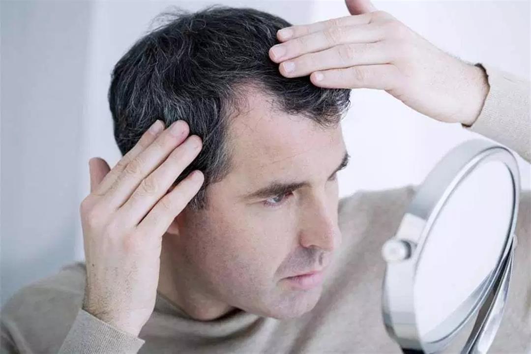 لماذا يعاني مرضى السكري من تساقط الشعر؟