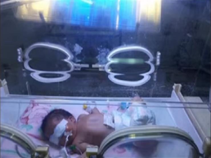 مستشفى المحلة يكشف عن تفاصيل إنقاذه رضيعة مصابة بانسداد فتحتَي الأنف