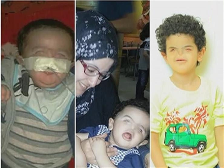 """متعاطفًا مع أول طفل مصري يولد دون أنف.. فلوكس: """"هودّيه المدرسة بنفسي"""""""