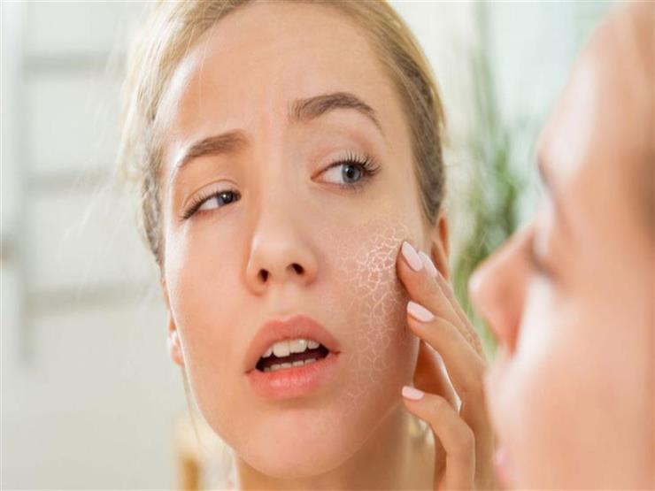 أطباء: بقع الجلد قد تكشف إصابتك بالسكري