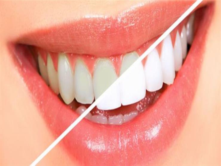 خطر على الجنين.. احذري تبييض الأسنان أثناء الحمل