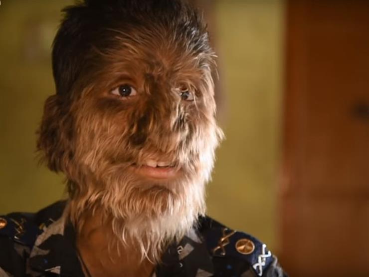 بعد قصة الطفل الذئب في الهند.. 8 معلومات عن هذا المرض