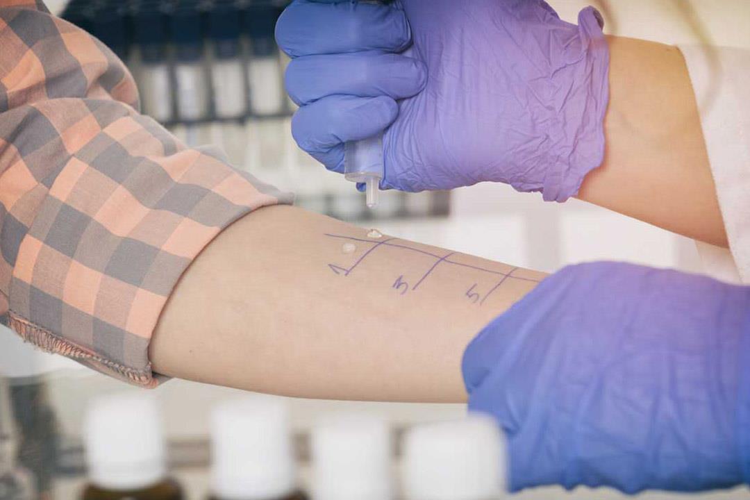 احتياطات ضرورية قبل إجراء اختبار الحساسية عن طريق الجلد