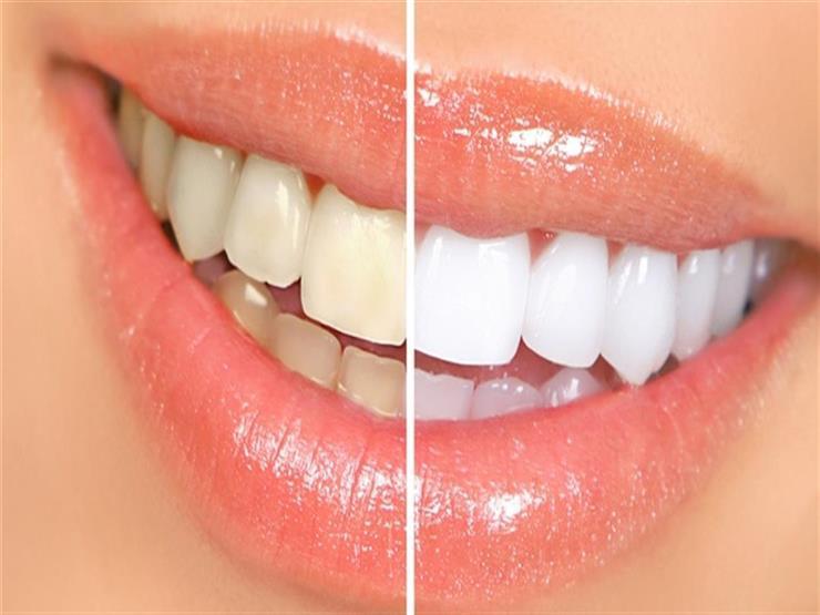 هل تبييض الأسنان يحرمك من تناول الشيكولاتة؟