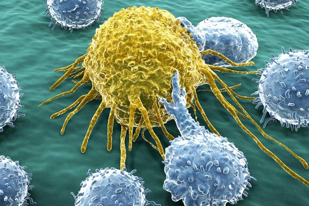 أسباب الإصابة بالسرطان وأعراض المرض وطرق علاجه