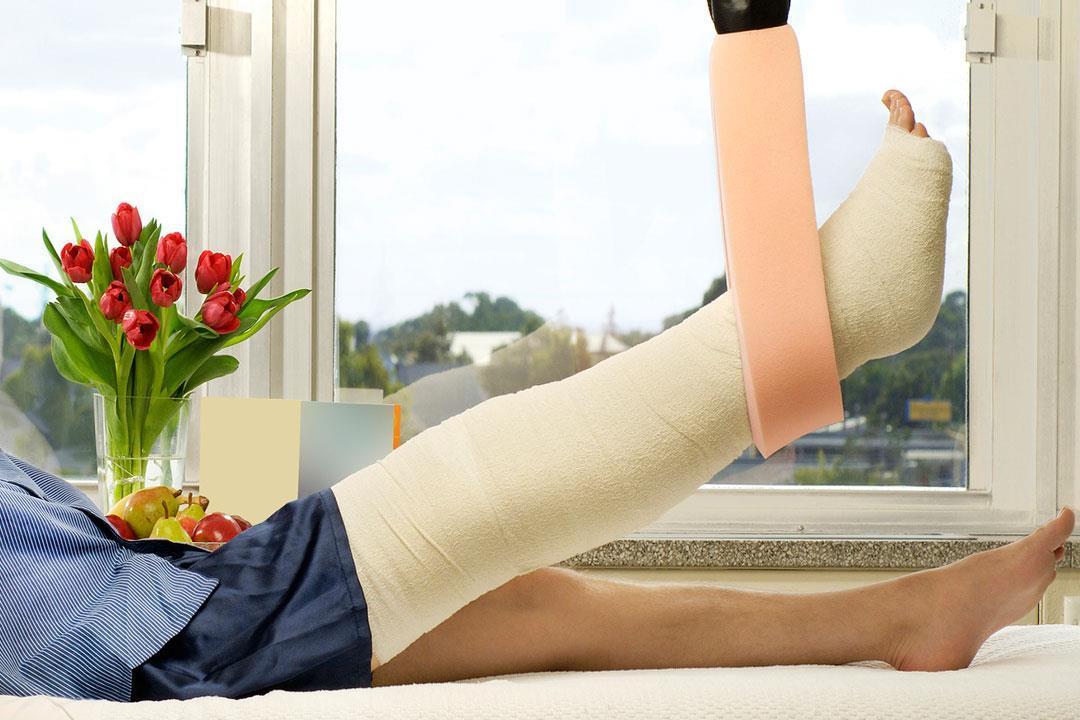 نصائح ضرورية لسرعة التئام كسور العظام.. واظب عليها