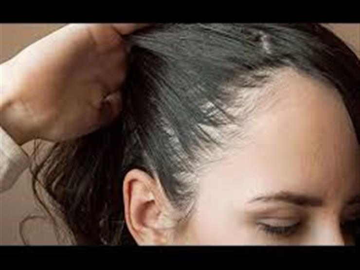 7نصائح لحماية الشعر من التساقط والصلع..منها عدم النوم بالزيوت الطبيعية