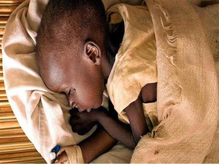 """""""الموت الصغير"""" مرض غامض يحير الأطباء في شرق أفريقيا"""