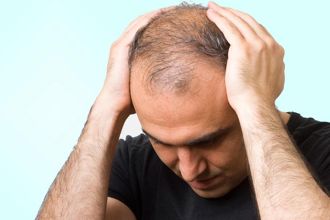 توفي في عملية زراعة الشعر.. ما السبب؟