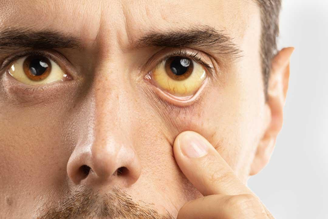 اصفرار العين مؤشر لإصابتك بفيروس كبدي.. إليك الأسباب