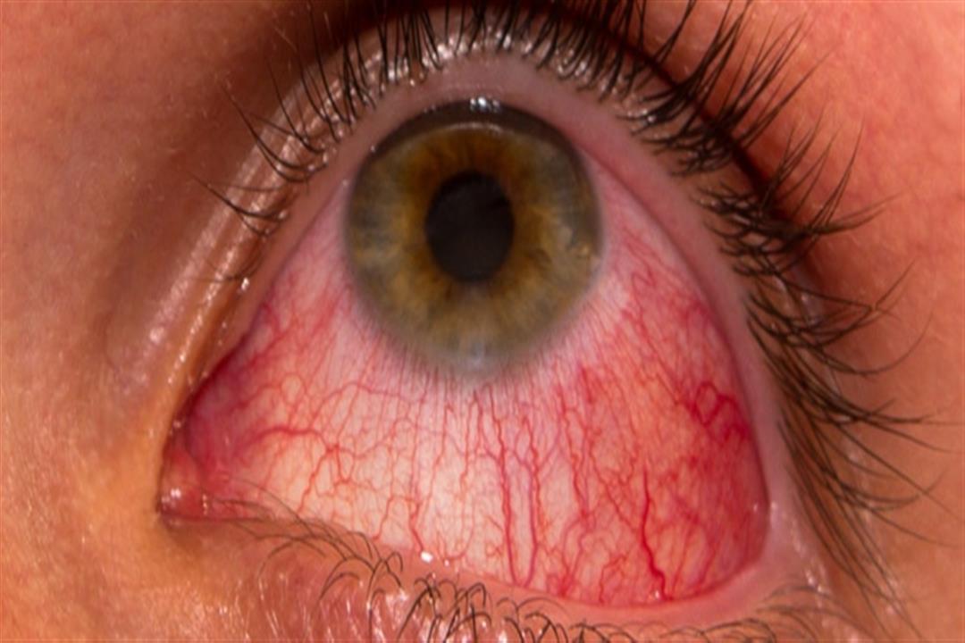 أدوية تهددك بجفاف العين.. إليك طرق الوقاية
