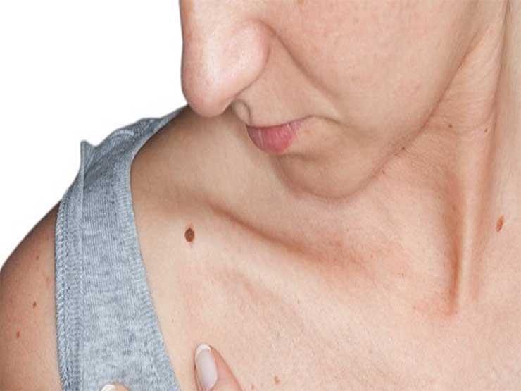 حكة الوحمة.. في هذه الحالة تنذر بسرطان الجلد