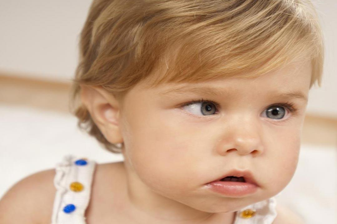 26b1f080c أحدهم كاذب.. أنواع حول العين وأسبابه وطرق علاجه. الحول عند الأطفال