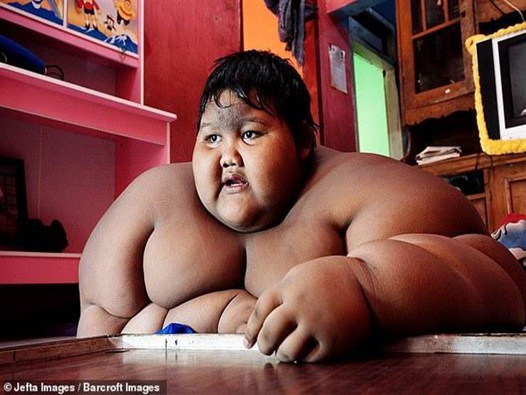 عمره 13 عاما.. شاهد كيف فقد أسمن طفل في العالم وزنه
