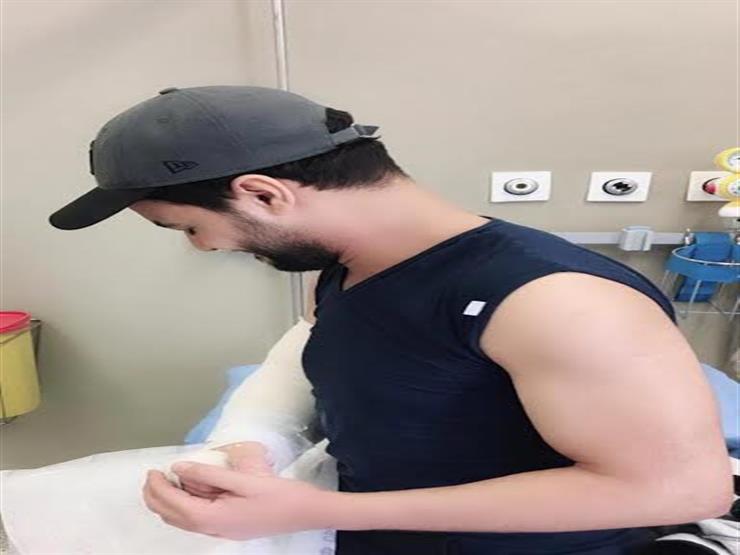 صورة| هكذا سخر أحمد جمال من كسر ذراعه