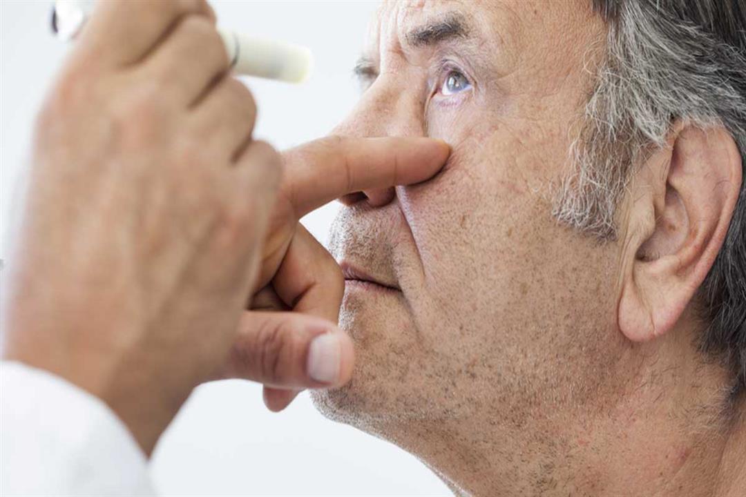 FDA تعتمد أول عقار لعلاج التهاب العصب البصري