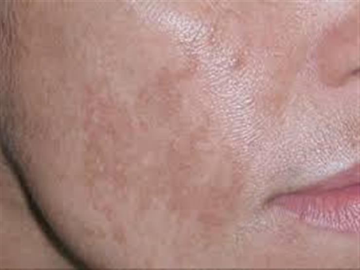 أسباب ظهور البقع الداكنة في الجسم
