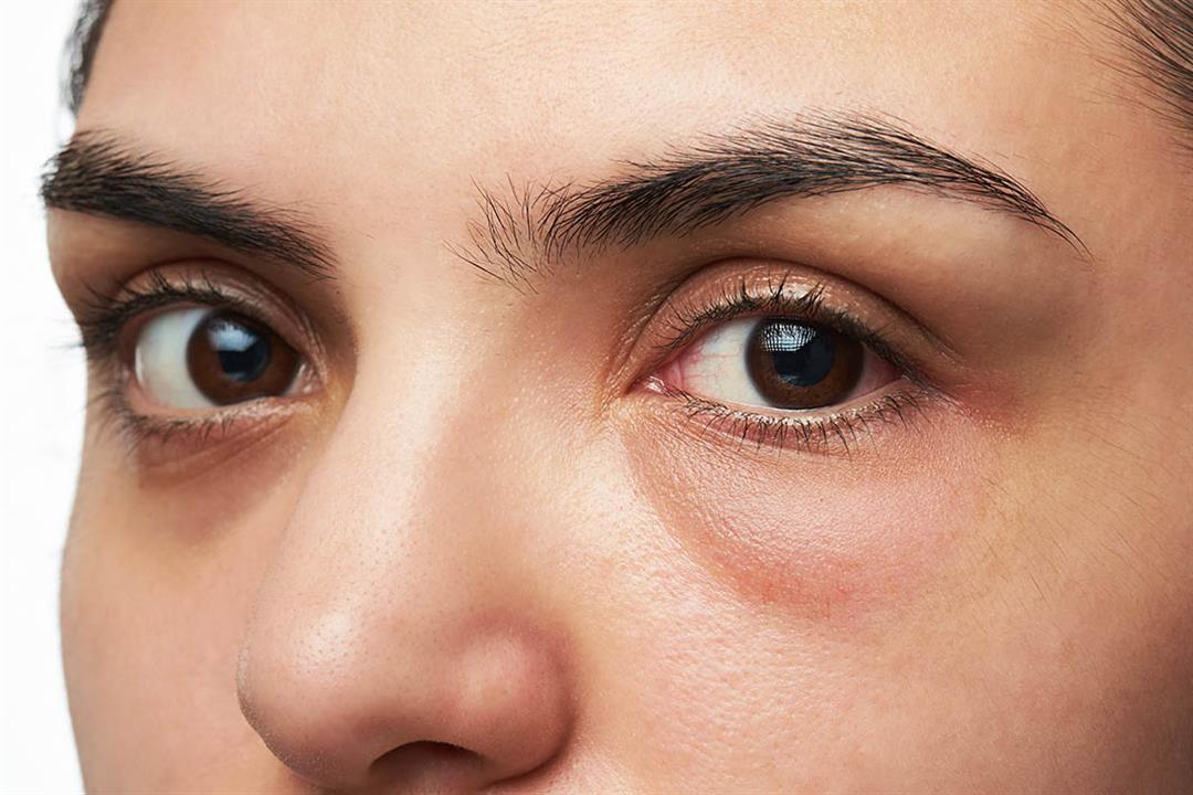 """أسباب عديدة وراء الإصابة بـ""""أكياس العين"""".. كيف نتخلص منها؟"""