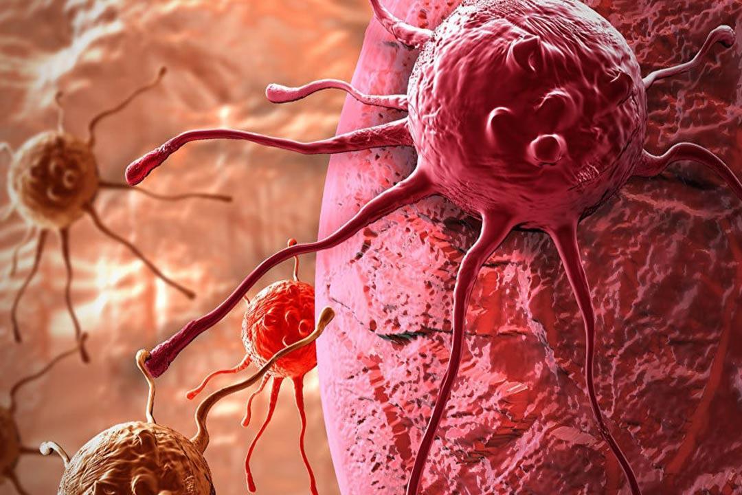 اكتشاف فيروس زكام يعالج سرطان المثانة