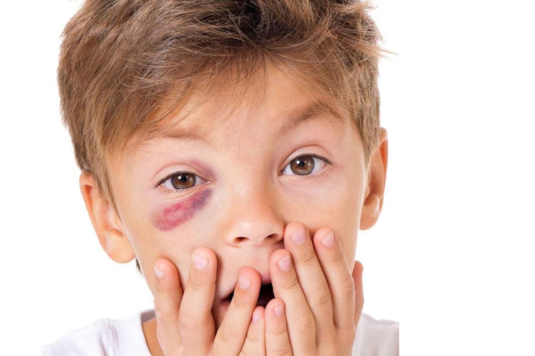 ماذا يحدث لعينك عند تلقي لكمة في الوجه؟