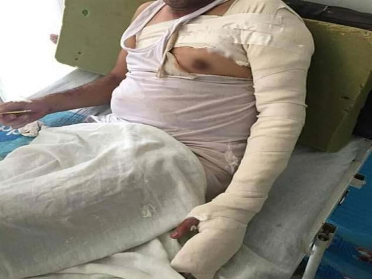 """""""عشان ميعملش راجل"""".. ابنة محامي الشرقية تروي قصة إشعال بلطجية النار في جسده"""