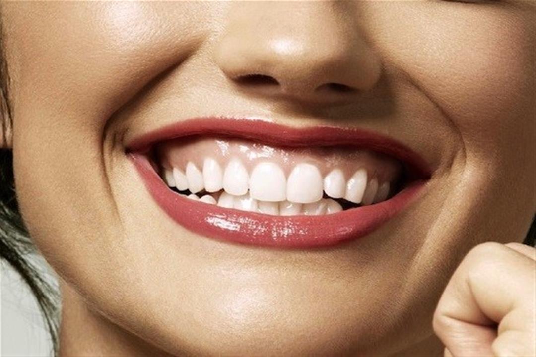 3 أسباب  وراء الابتسامة اللثوية.. إليك طرق التخلص منها