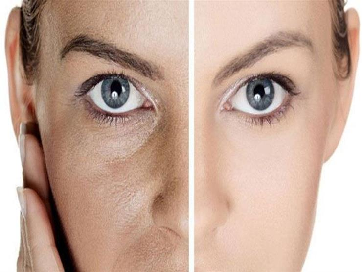 بـ 7 حيل تخلصي من مسام بشرتك الواسعة