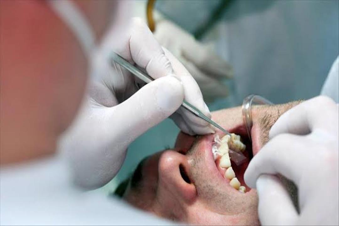 وداعًا لحشو الأسنان.. الطب الصيني يقدم حل جديد
