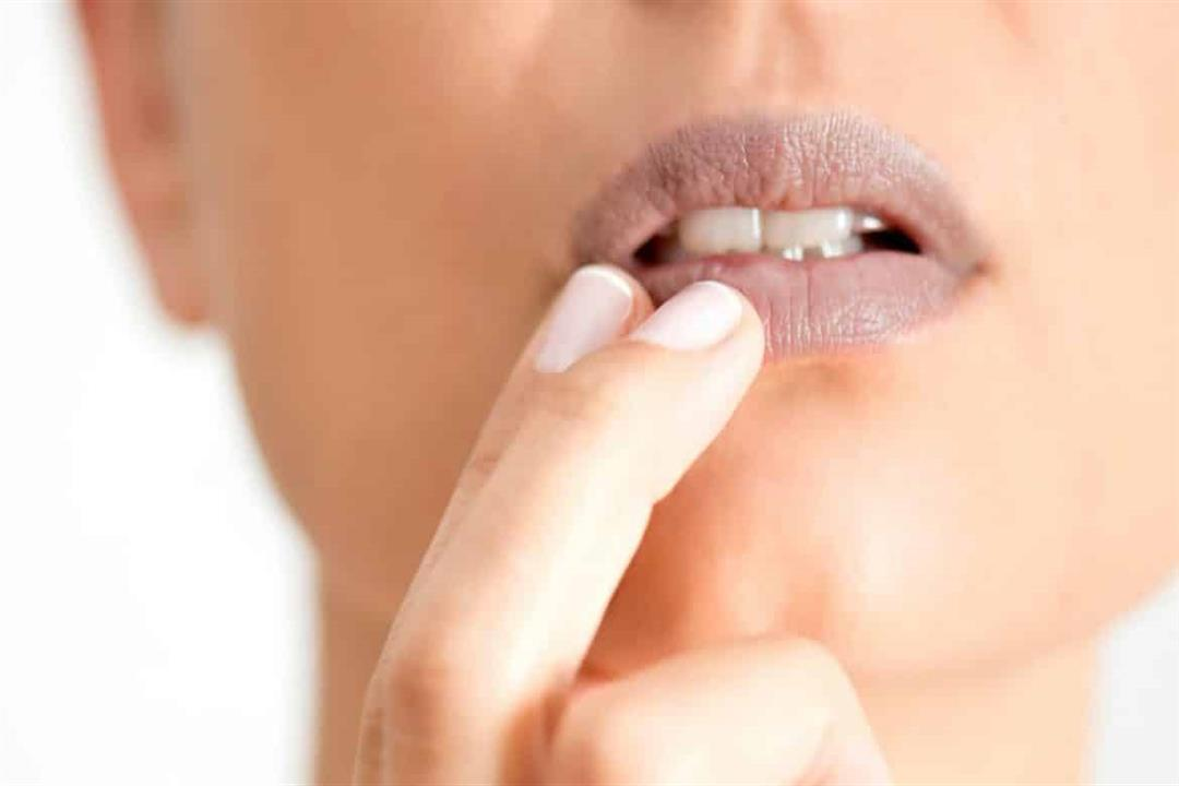 فمك يكشف إصابتك بالأنيميا.. إليك أعراض نقص الحديد على اللسان واللثة