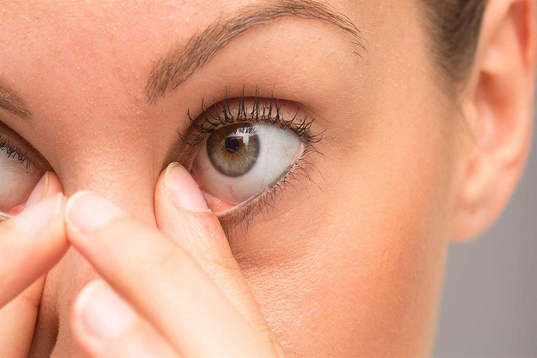 8 طرق بسيطة لإزالة الرمش من داخل العين (صور)