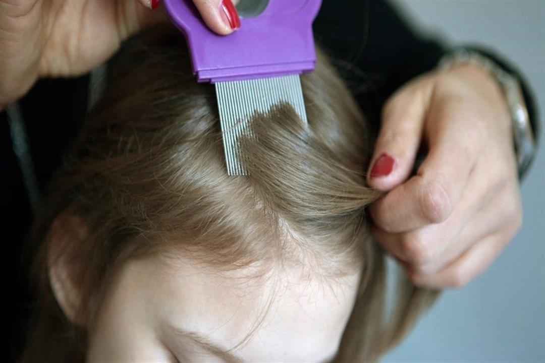 قبل دخول المدراس.. 7 طرق لوقاية طفلِك من قمل الشعر (إنفوجرافيك)