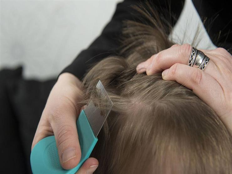أعراض إصابة شعر الطفل بالقمل