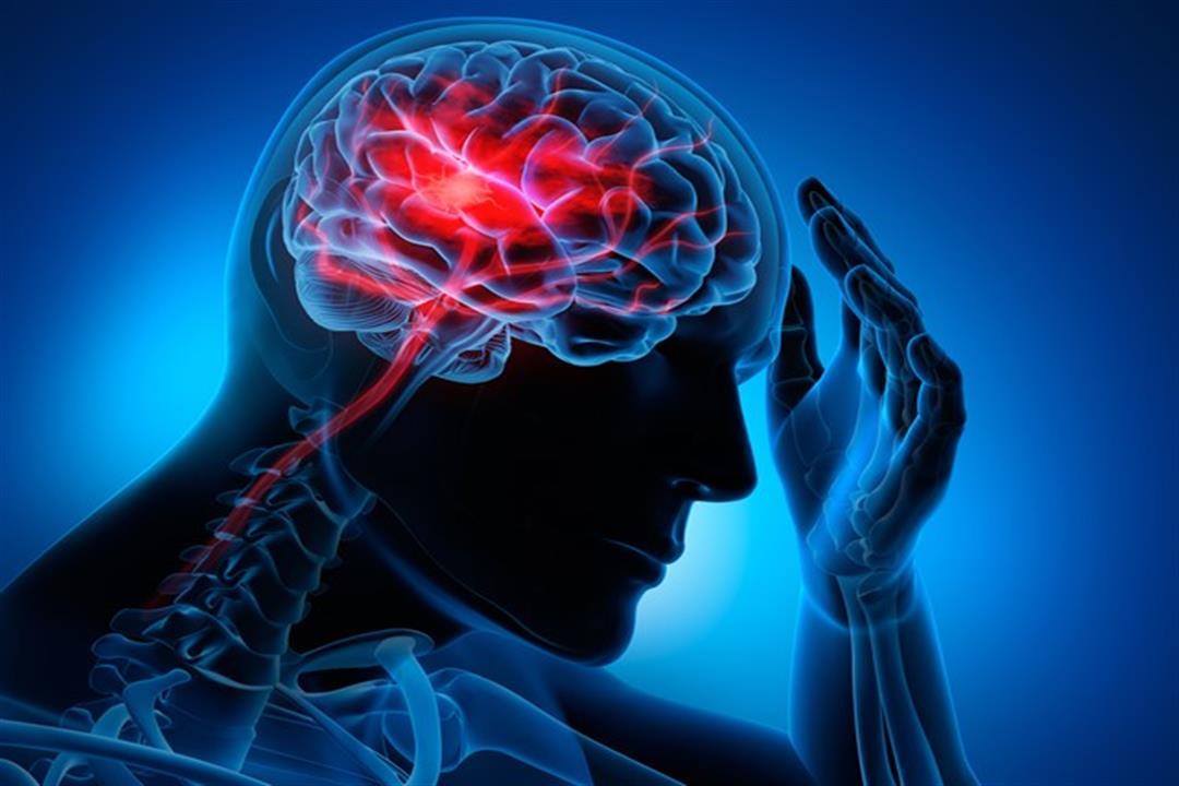 باحثون: الإنفلونزا وكورونا قد يتسببا في الإصابة بالسكتة الدماغية