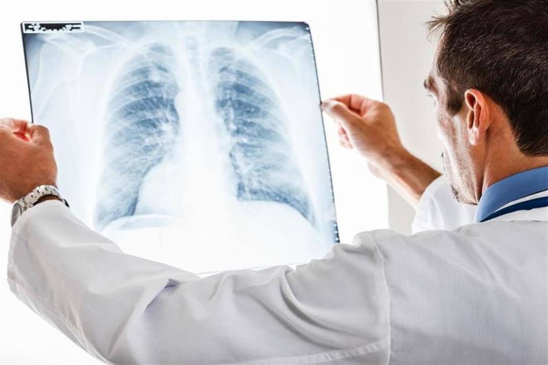 دراسة تكشف خطورة كورونا على مرضى سرطان الرئة