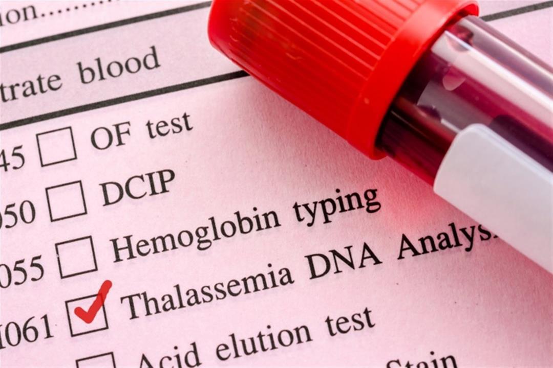 في أسبوع التوعية بها.. طبيبة توضح طرق الوقاية من أمراض الدم الوراثية