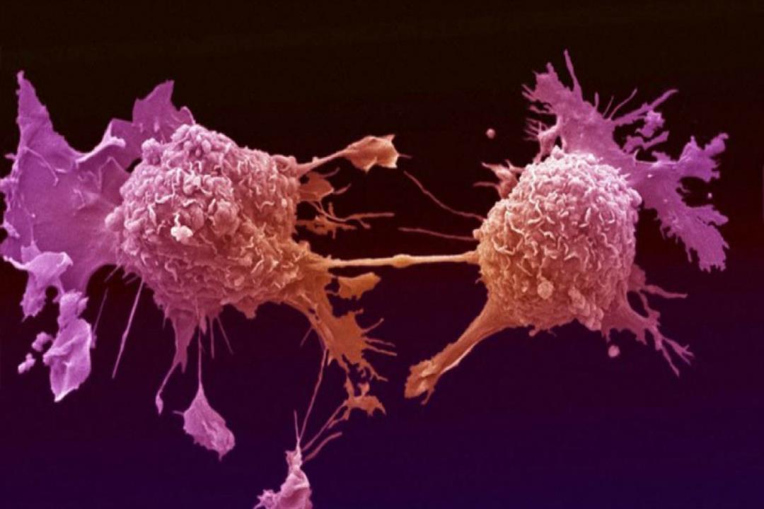ابتكار تقنية مناعية جديدة لتدمير الخلايا السرطانية
