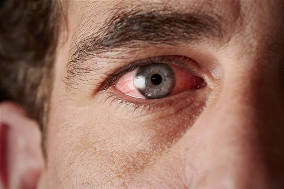 أبرزها الكمادات الباردة.. 6 طرق طبيعية لعلاج حساسية العين