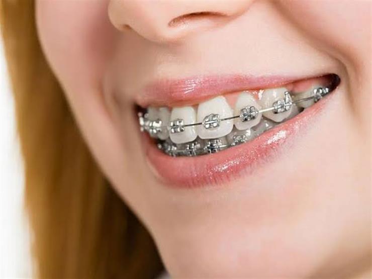 البديل مسكن ضروري السلك الخلفي للأسنان Dsvdedommel Com